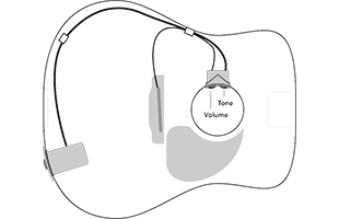 diagram with acoustic guitar body outline showing typical installation and wiring for Fishman Sonitone GT1 pickup system